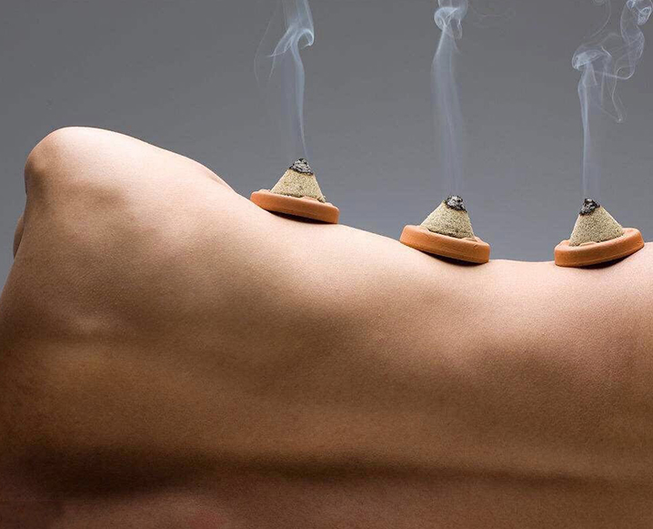 what is Moxibustion