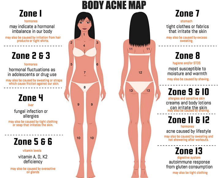 What Your Acne Map Is Telling You - The Chalkboard